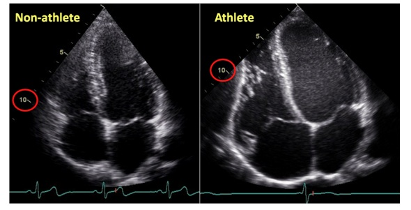 steroids affect heart rate