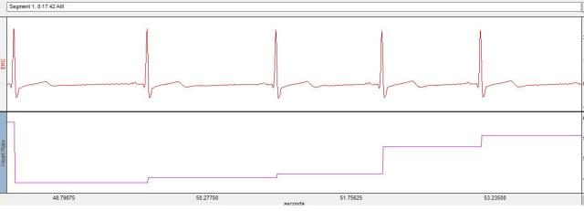athlete ECG RSA1